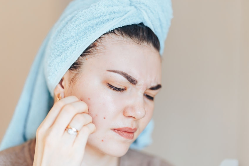 Skin Picking Treatment image