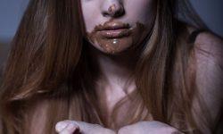 Symptoms of Bulimia Nervosa image