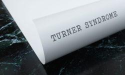 Understanding Turner Syndrome image