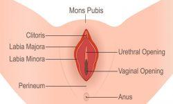 What is Vulvar Vestibulitis image